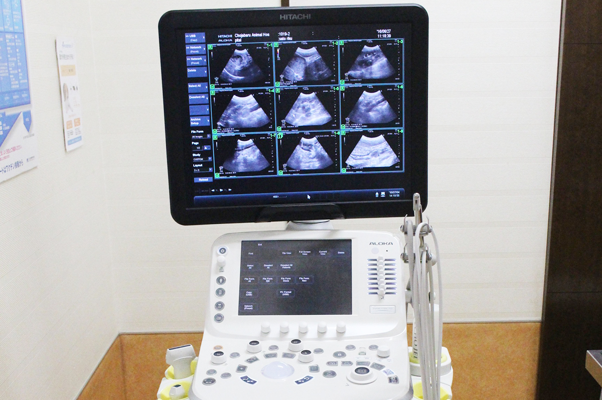 超音波診断装置 日立アリエッタ70 2台