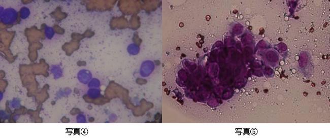 肥満細胞腫・乳腺腫瘍