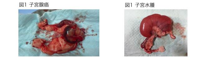 子宮腺癌と子宮水腫
